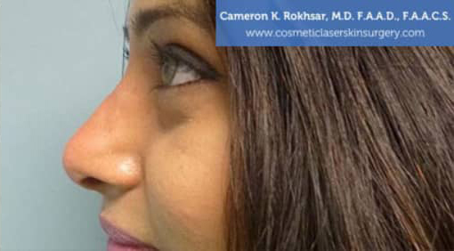 Case 3 - after non surgical rhinoplasty