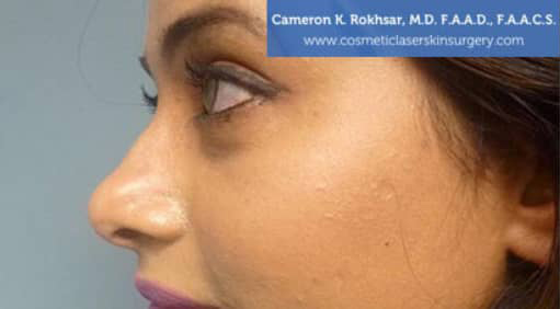 Case 3 - before non surgical rhinoplasty