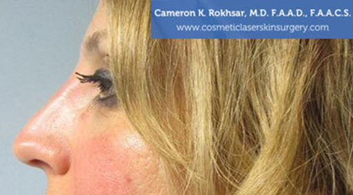Case 4 - after non surgical rhinoplasty