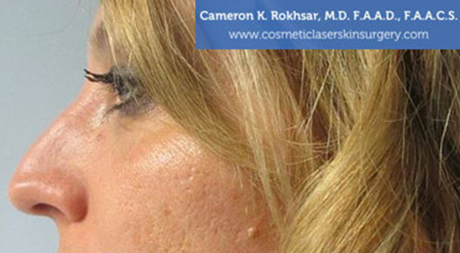 Case 4 - before non surgical rhinoplasty