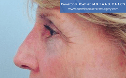 Case 2 - after non surgical rhinoplasty