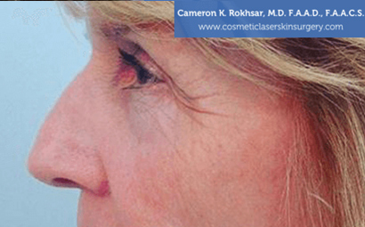 Case 2 - before non surgical rhinoplasty