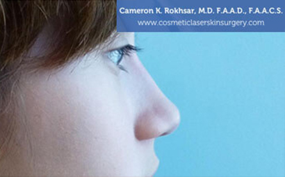 Case 5 - after non surgical rhinoplasty