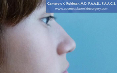 Case 5 - before non surgical rhinoplasty