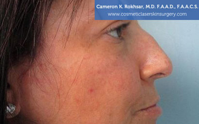 Case 6 - before non surgical rhinoplasty