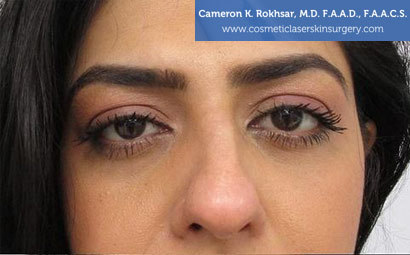 Case 1 - before non surgical rhinoplasty