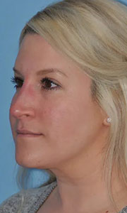 Non-surgical rhinoplasty with Dr. Bloom - Patient 1 After Procedure