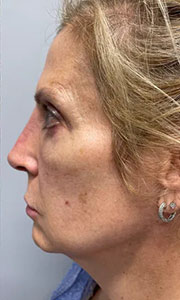 Non-surgical rhinoplasty with Dr. Bloom - Patient 2 After Procedure