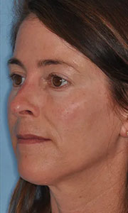 Non-surgical rhinoplasty with Dr. Bloom - Patient 3 After Procedure