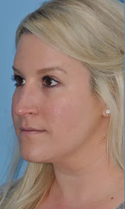 Non-surgical rhinoplasty with Dr. Bloom - Patient 1 Before Procedure