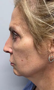 Non-surgical rhinoplasty with Dr. Bloom - Patient 2 Before Procedure