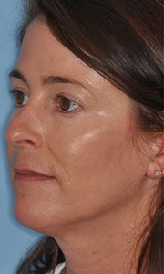 Non-surgical rhinoplasty with Dr. Bloom - Patient 3 Before Procedure