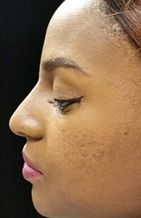 Photos: Woman's face, After Non-Surgical Rhinoplasty treatment, side view, patient 2