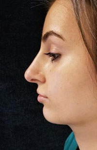 Photos: Woman's face, After Non-Surgical Rhinoplasty treatment, side view, patient 3