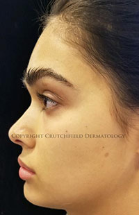 Photos: Woman's face, Before Non-Surgical Rhinoplasty treatment, side view, patient 1