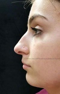 Photos: Woman's face, Before Non-Surgical Rhinoplasty treatment, side view, patient 3