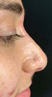 Woman face, after Non-Surgical Nose Job, right side view, patient 1 - by Dr. Anna Guanche
