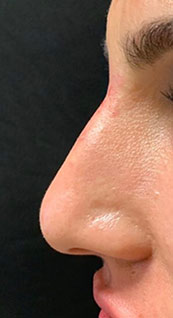 Woman face, after Non-Surgical Nose Job, left side view, patient 2 - by Dr. Anna Guanche