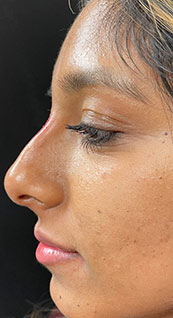 Woman face, after Non-Surgical Nose Job, left side view, patient 3 - by Dr. Anna Guanche