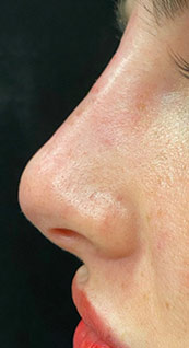 Woman face, after Non-Surgical Nose Job, left side view, patient 4 - by Dr. Anna Guanche