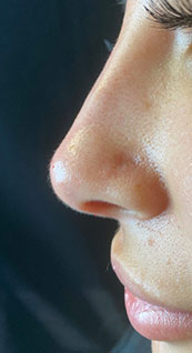 Woman face, after Non-Surgical Nose Job, left side view, patient 5 - by Dr. Anna Guanche