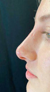 Woman face, after Non-Surgical Nose Job, left side view, patient 6 - by Dr. Anna Guanche