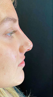 Woman face, after Non-Surgical Nose Job, right side view, patient 6 - by Dr. Anna Guanche
