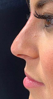 Woman face, after Non-Surgical Nose Job, left side view, patient 7 - by Dr. Anna Guanche
