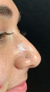Woman face, before Non-Surgical Nose Job, right side view, patient 1 - by Dr. Anna Guanche