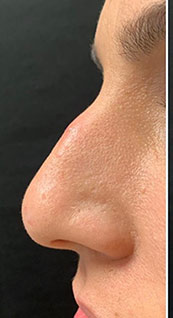 Woman face, before Non-Surgical Nose Job, left side view, patient 2 - by Dr. Anna Guanche