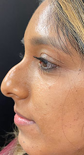 Woman face, before Non-Surgical Nose Job, left side view, patient 3 - by Dr. Anna Guanche