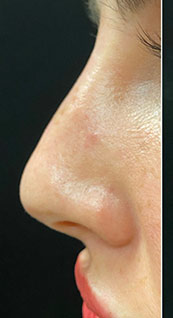 Woman face, before Non-Surgical Nose Job, left side view, patient 4 - by Dr. Anna Guanche