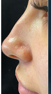 Woman face, before Non-Surgical Nose Job, left side view, patient 5 - by Dr. Anna Guanche