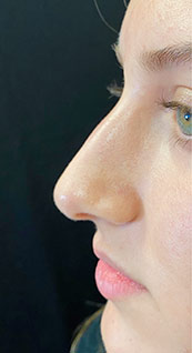 Woman face, before Non-Surgical Nose Job, left side view, patient 6 - by Dr. Anna Guanche