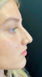 Woman face, before Non-Surgical Nose Job, right side view, patient 6 - by Dr. Anna Guanche